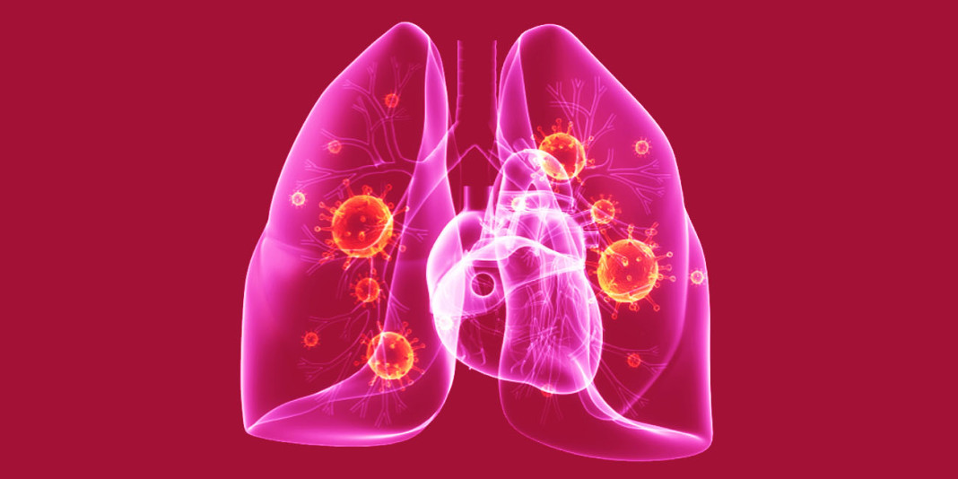 Pneumonia: 15 Things You Should Know (Part 2)