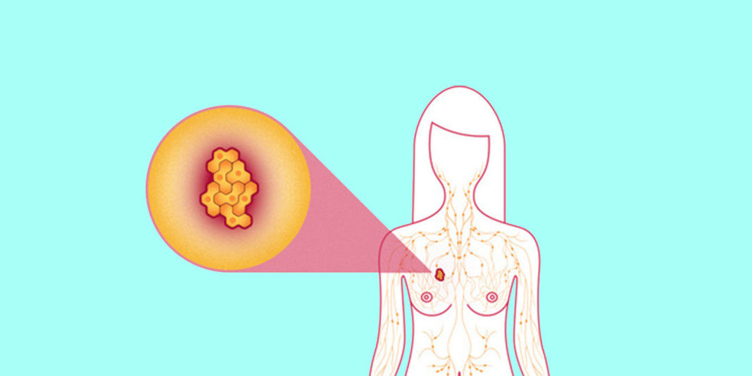 Breast Cancer: 8 Myths You Thought Were True